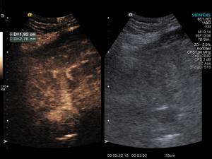 KM-Sono HCC Tumorzapfen Spätphase